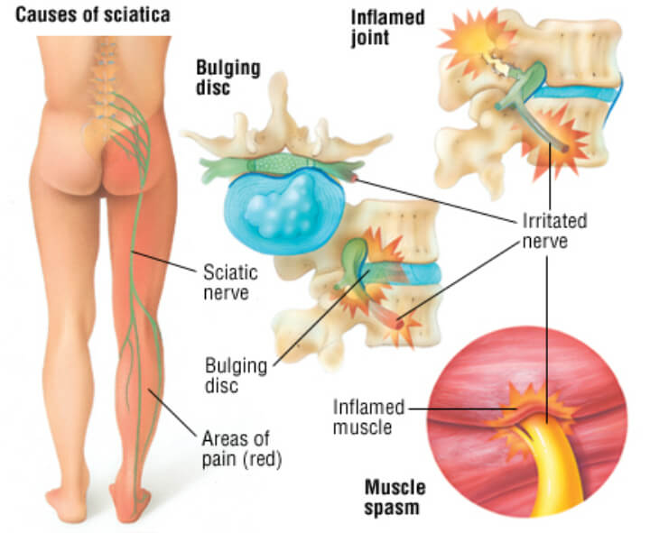 sciatica pain relief in st louis mo